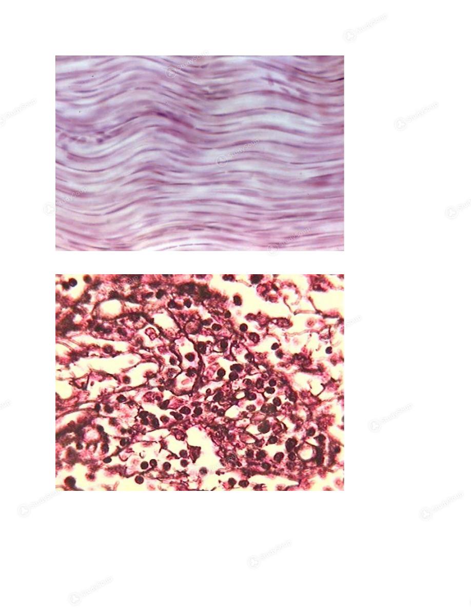 3 Dense Irregular Fibrous Connective Tissue Dense Regular Fibrous